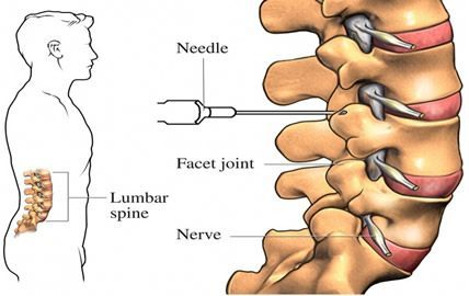 epidural steroid injections for back pain