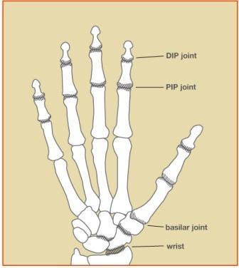 Osteoarthritis Hand Diagram