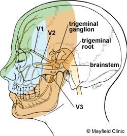 Face Pain Explained