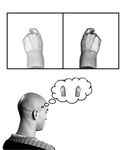 Phantom Limb Pain Mirror Brain