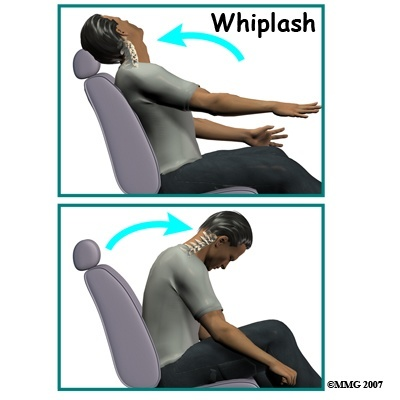 Whiplash Demonstration