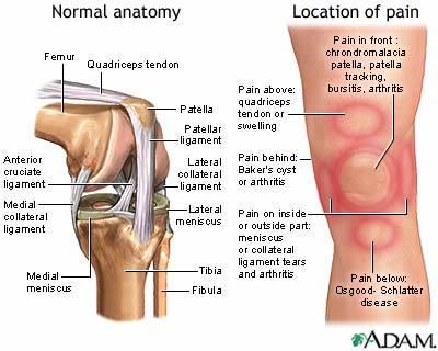 Knee pain relief nevada pain las vegas henderson knee pain ccuart Images