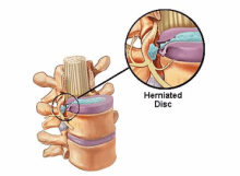 Herniated_Disc