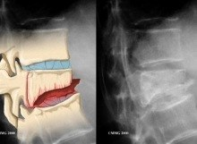 Vertebral Compression Fracture Comparison