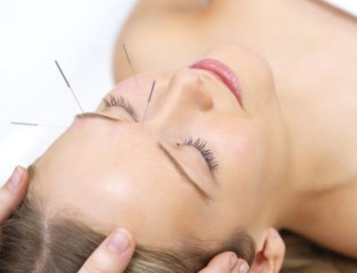 Acupuncture by Dr. Kibler