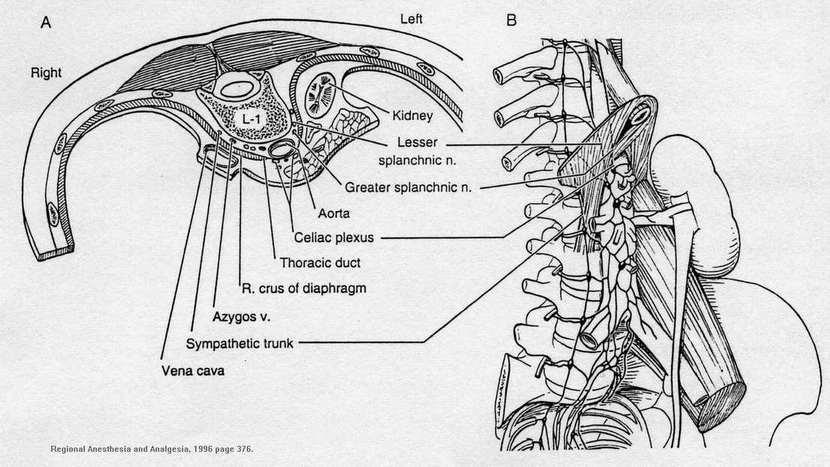 Celiac Plexus Block Procedure