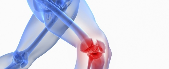 Knee Joint Injections