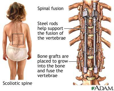 Spinal Fusion Explained