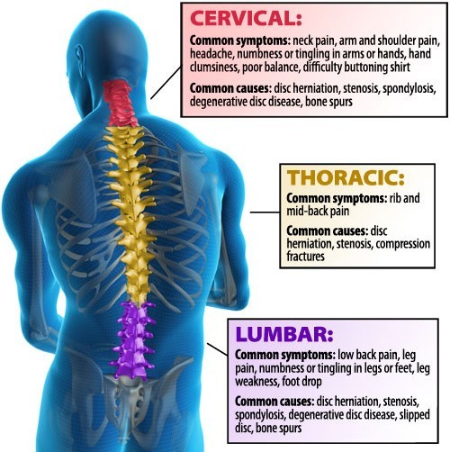 back pain diagram