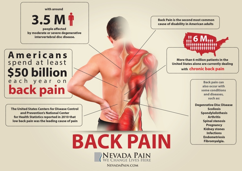 BACK-PAIN-INFOGRAPHIC_Nevada1-1024x725.jpg