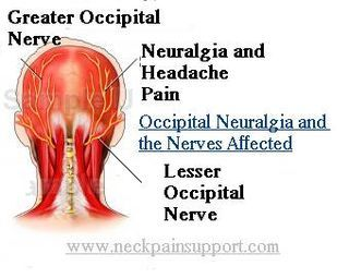 Occipital Neuralgia Diagram