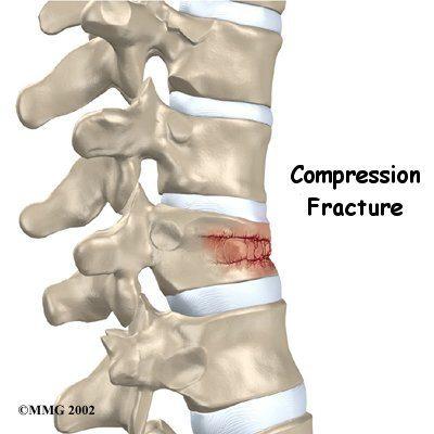 Vertebral Compression Fracture