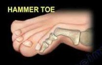 Hammer Toe Drawing