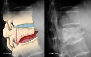 Vertebroplasty