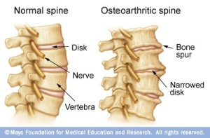 Osteoarthritis Spine Comparision