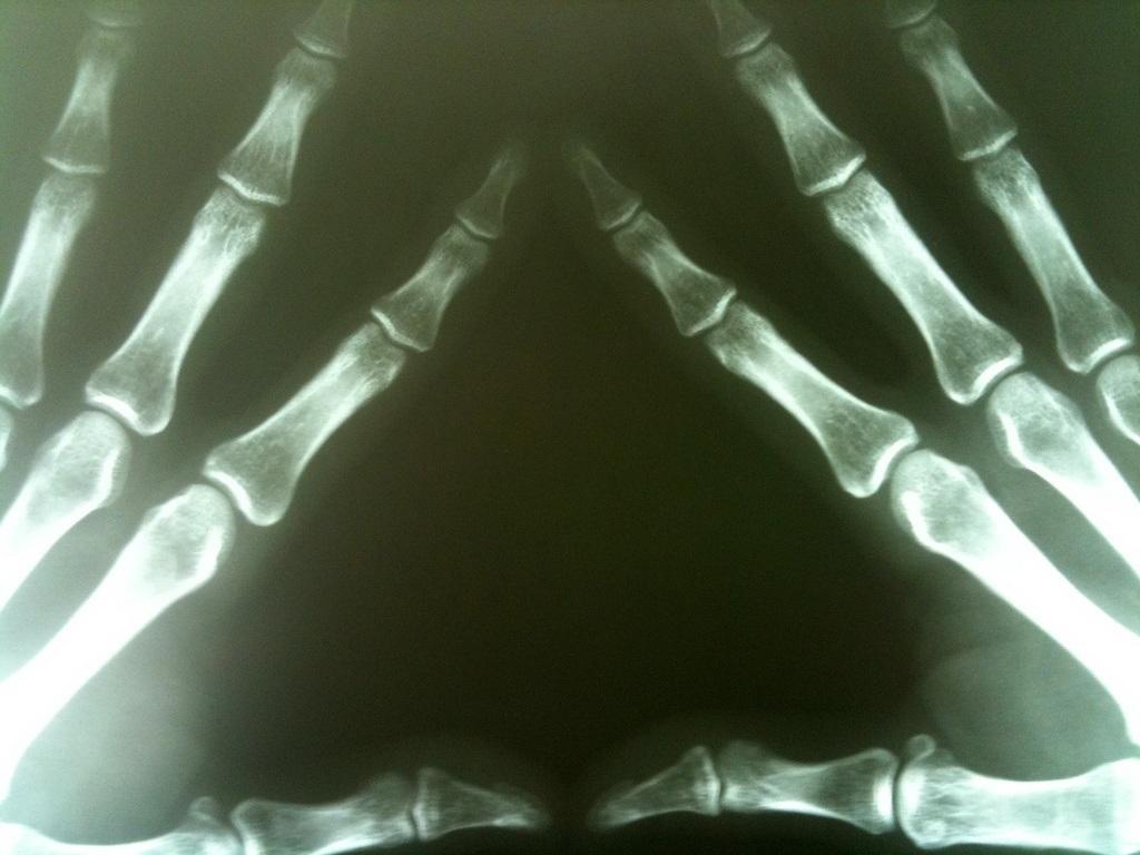 arthritis nevada pain